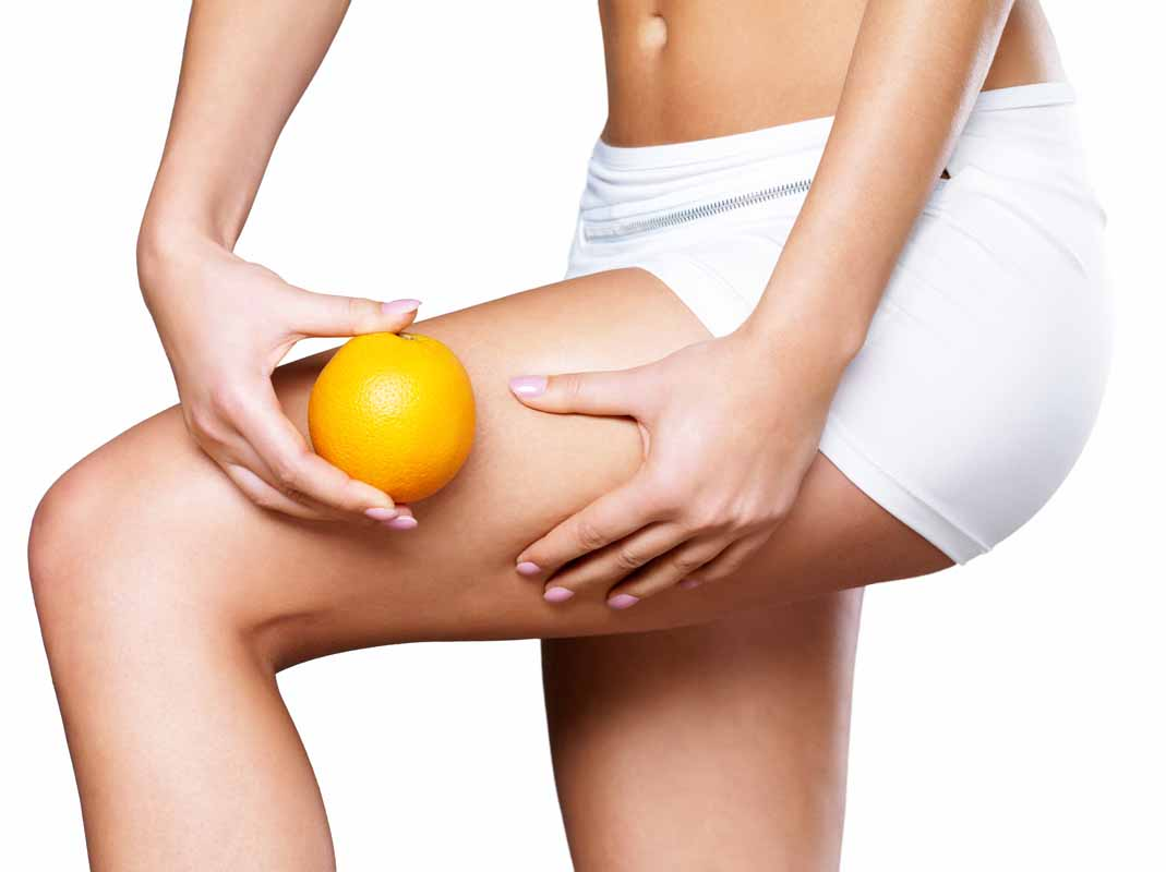 le mie strategie per ridurre la cellulite