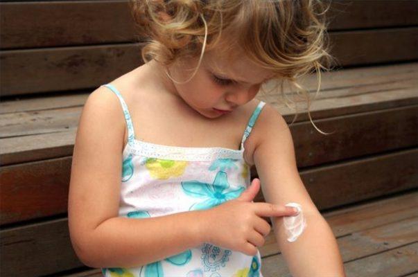 dermatite atopica nei bambini