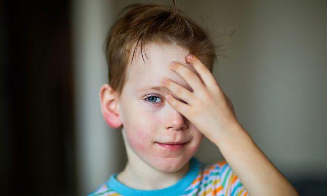 Orticaria nei bambini: cos'è e come curarla