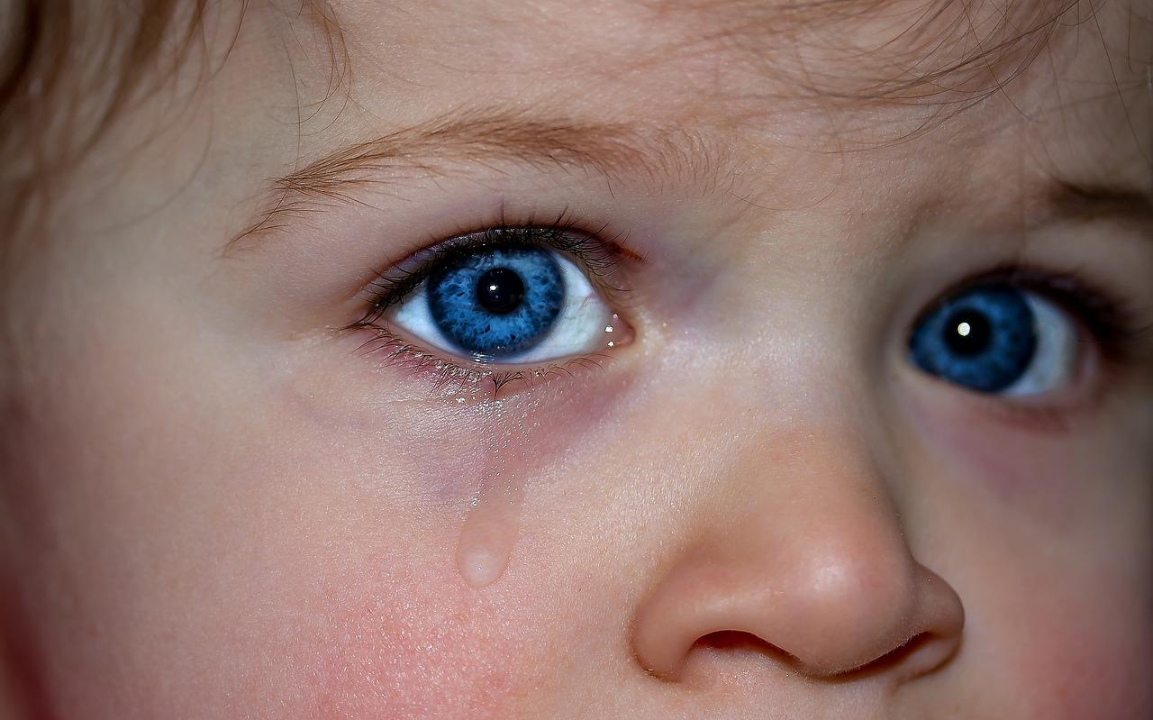 Orzaiolo bambini: cause, sintomi e cure. Il parere dell'esperto