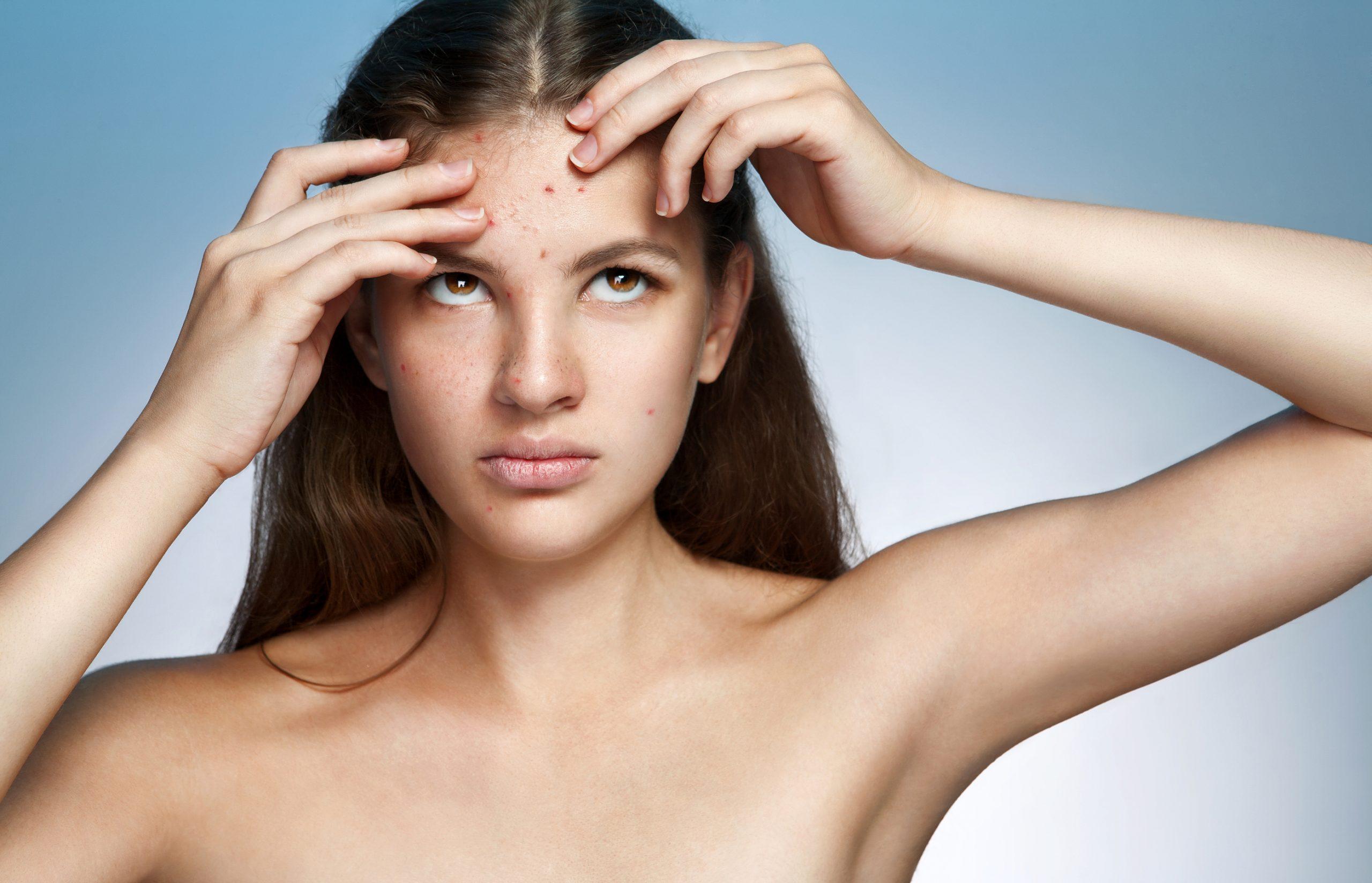 Acne da sole: i rimedi naturali. 8 cibi per eliminare l'acne