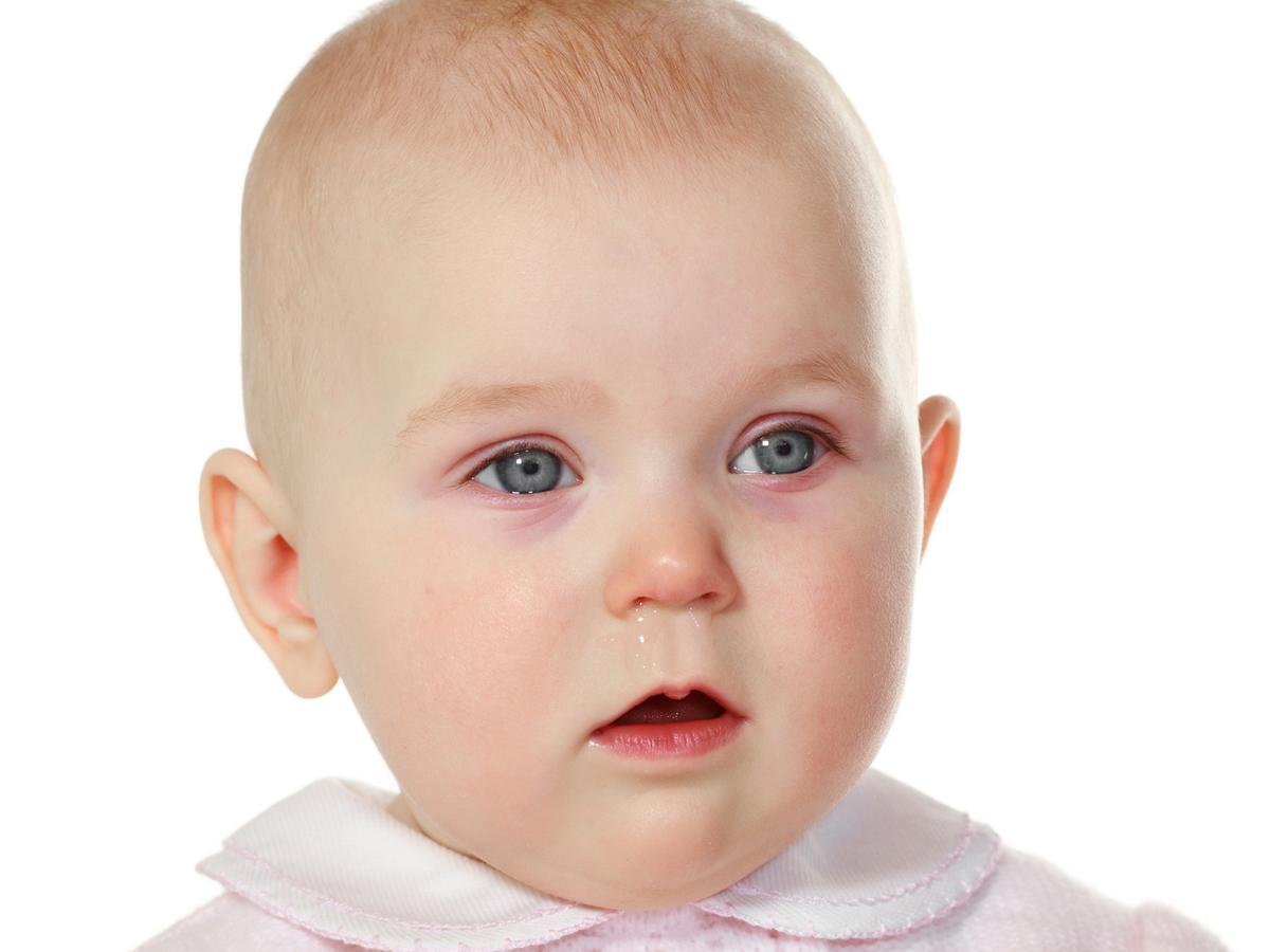 Congiuntivite nei bambini: : rimedi, quanto dura. E' un sintomo del Covid?