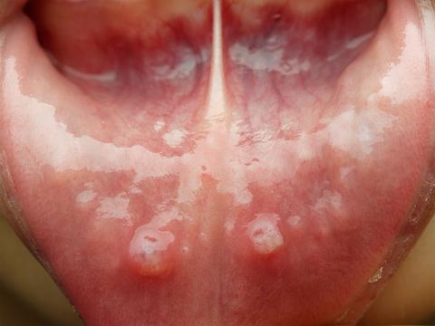 stomatite lingua  scarlattina immagini bambini   lingua a fragola   stomatite cura   lingua bianca bambini   afta sulla lingua