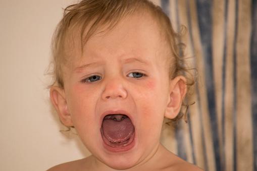 Stomatite nei bambini: quanto dura, cure naturali, è contagiosa,